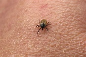 Expert Warns of New Tick-borne Disease - UConn Today