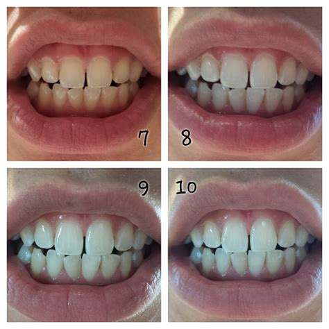 Home Teeth Whitening by Opalescence Go 6 At Home Teeth Whitening System