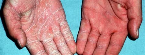 Wood L Examination Of Tinea Versicolor by 100 Wood L Examination Of Tinea Versicolor Wood
