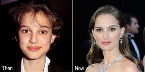 Natalie Portman Nose Job Every Celebrity Has Had