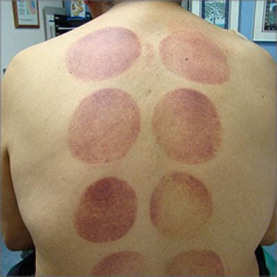Ecchymotic patches | MDedge Family Medicine