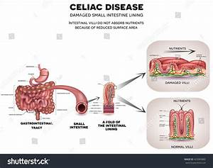 Celiac Disease Affected Small Intestine Healthy Stock