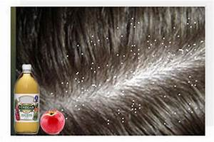 Divalicious  20 Home Remedies To Get Rid Of Dandruff