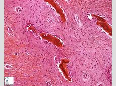 fibrous dysplasia Humpathcom Human pathology