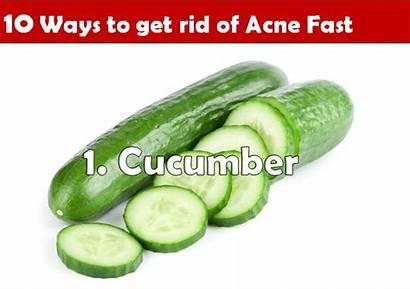 Rid Acne Fast Cucumber Ways Scars Skin