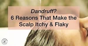 Dandruff  6 Reasons That Make The Scalp Itchy  U0026 Flaky