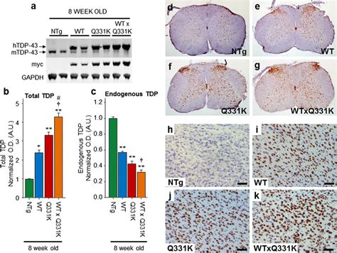 Expression Of Tdp43 Wt And Tdp43 Q331k In Mice Decreases