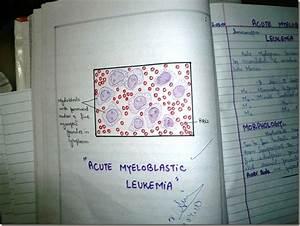 Histology Slides Database  Aml  U2013 Acute Myeloblastic Leukemia Blood Film Diagram