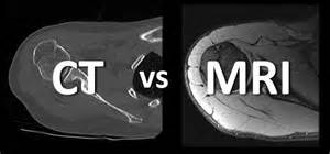 difference between mri and cat scan what s the difference between an mri and ct cincinnati