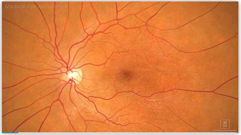 stages  macular degeneration medical eye associates