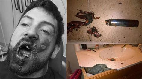 rokok elektronik meledak  mulut pria  kehilangan