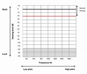 Audiograms Explained