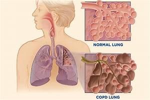 U2018scary U2019 Lung Disease Now Afflicts More Women Than Men In U