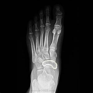 Navicular Fracture S92.253A 825.22 | eORIF