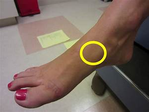 Foot Stress Fracture  Which Stress Fractures Are The Most