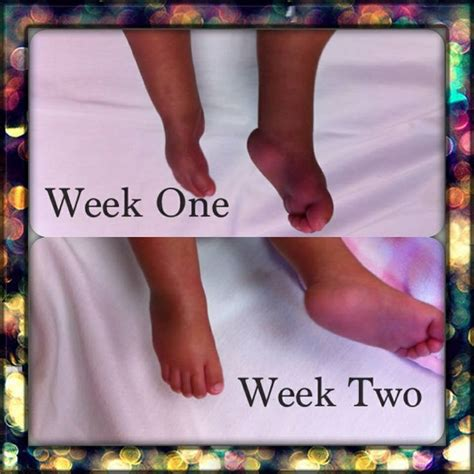 Positional clubfoot can be corrected by immobilizing the joints in a cast and by using physical therapy to stretch the foot and ankle. 1000+ images about Club foot/feet Awareness on Pinterest ...