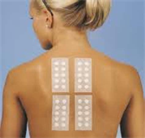 patch test sostanze patch test per la diagnosi delle allergie da contatto