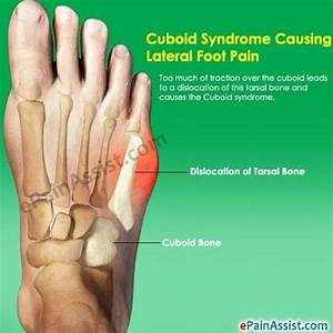 Lateral Foot Pain Causes