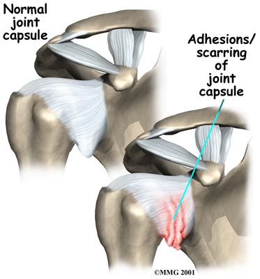 Image result for adhesive capsulitis