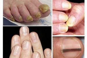 Vitamin B12 Deficiency Brittle Nails - Nail Ftempo