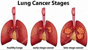 Dr  Farooq Khan U0026 39 S Elite Clinic  Lung Cancer