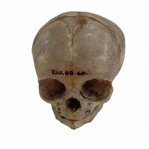 Infant Bodies Were  U0026 39 Prized U0026 39  By 19th Century Anatomists