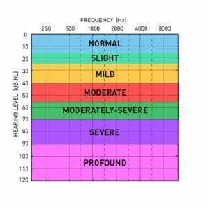 How Is Classification Of Hearing Loss Is Done On Basis Of