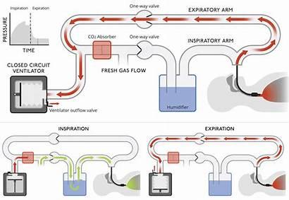 Closed Ventilators Medical Ventilator Circuit Diagram System