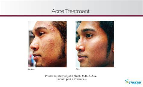 best acne light therapy blue light bestofbothworldsaz com