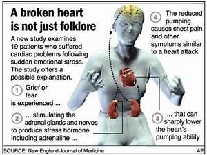 takotsubo cardi... Broken Heart Syndrome
