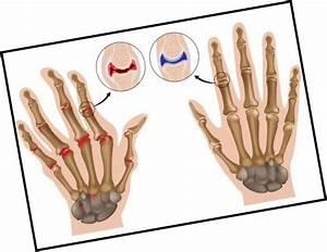 Лечение артроза коленного сустава прополисом