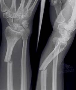 Fractured Ulna / Recovery Time is about 8 Weeks – #wrist # ...