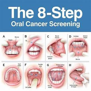 Mouth Cancer - Dee Shapland Dental Surgery