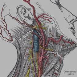 Cervical artery dissection - RCEMLearning India