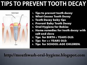 The Advanced Guide To Prevent Tooth Decay  9 Topics