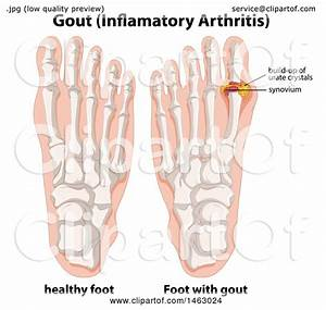 Clipart Of A Medical Diagram Of Human Feet With Gout