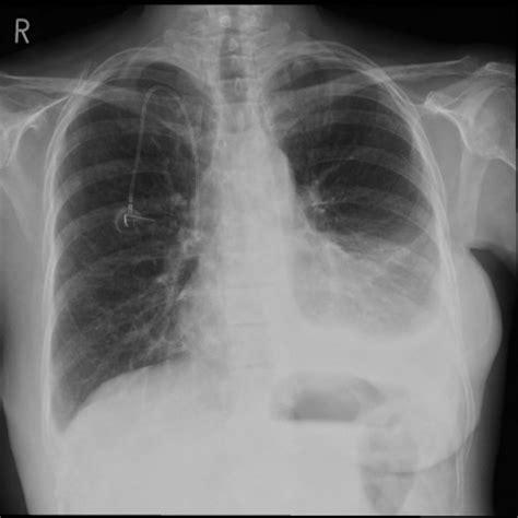 malignant pleural effusion radiology  st vincents