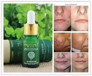 Buy face care acne scar removal cream Acne Spots skin ...