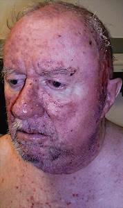 Treatment Of Recurrent Squamous Cell Carcinoma Of The Skin