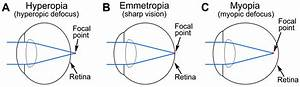 Understanding Images  Seeing Myopia For What It Is
