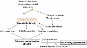 Vascular hypothesis of COPD development and progression ...