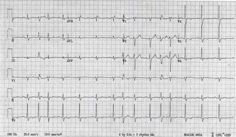 atypical av nodal reentrant tachycardia wikidoc