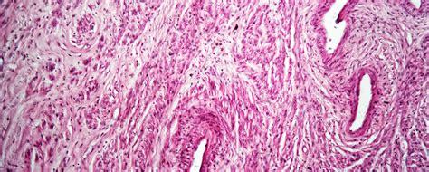 le fibrome uterin  symptomes  traitements gynco