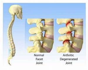 Facet Joint Neurotomies  Rhizotomies   U2013 Painscience