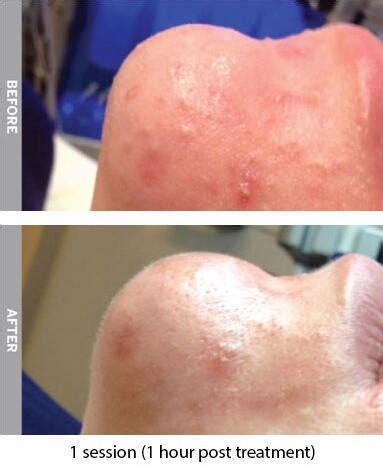 oilycongestedskinrevise dermlaze