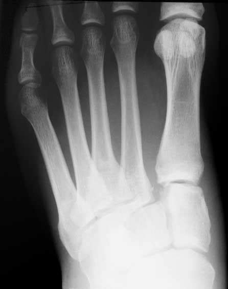 A lisfranc injury occurs when one or more of the metatarsal bones are displaced from the tarsus, which is a cluster of bones at the top of the foot, just below the ankle joint. Lisfranc Injury - Ankle to Foot Clinic