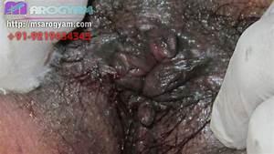 hemorrhoid external piles masses | Piles Haemorrhoids ...
