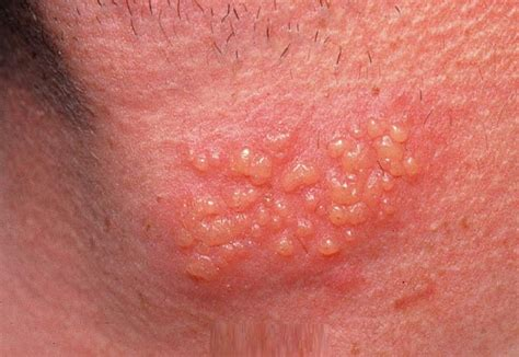 Causes, Symptoms, Pictures, Treatment