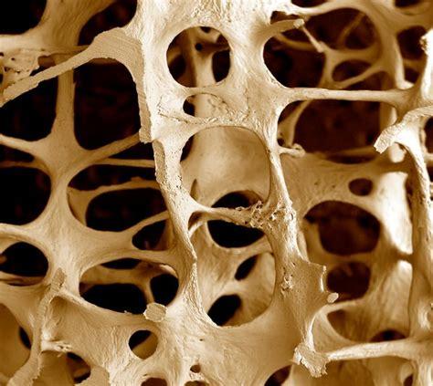 osteoporose orthomannheimde
