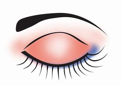 Eye Clipart Makeup Clip Queen Eyelid Urban